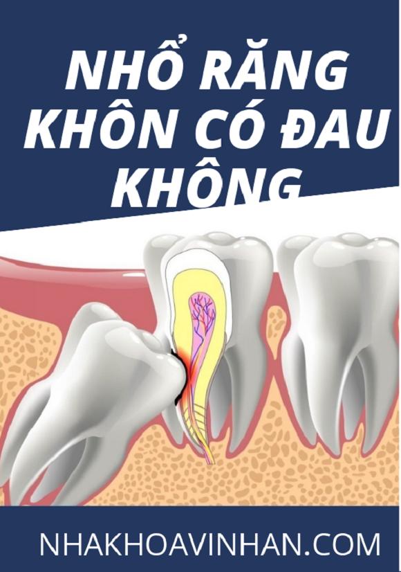 Răng khôn và những biến chứng nguy hiểm không ngờ