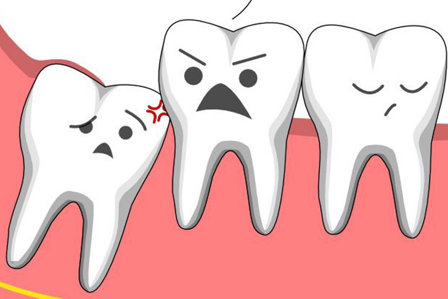 Những điều nên và không nên khi nhổ răng khôn
