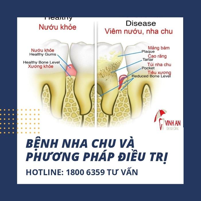 Nha chu: Nguyên nhân, triệu chứng, chẩn đoán và điều trị