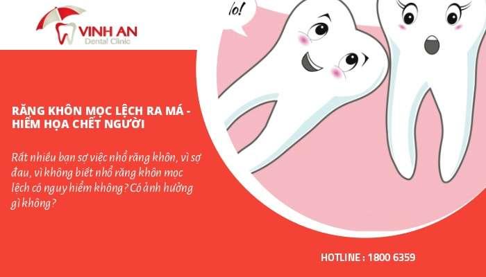 hiem-hoa-rang-khon-moc-lech-ma