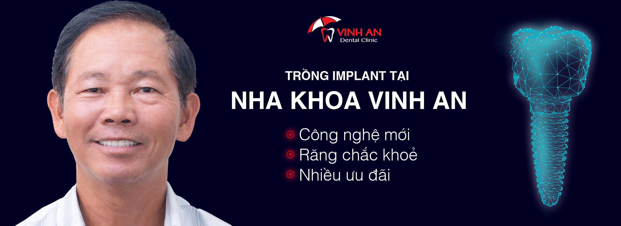 dịch vụ implant