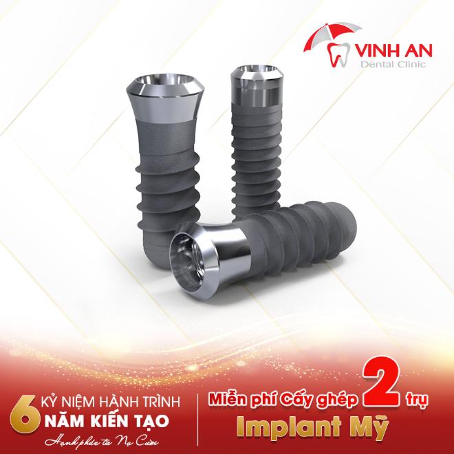 1 Giải nhất chất ngất: Miễn phí Cấy ghép 2 trụ Implant Mỹ trị giá 37TR.