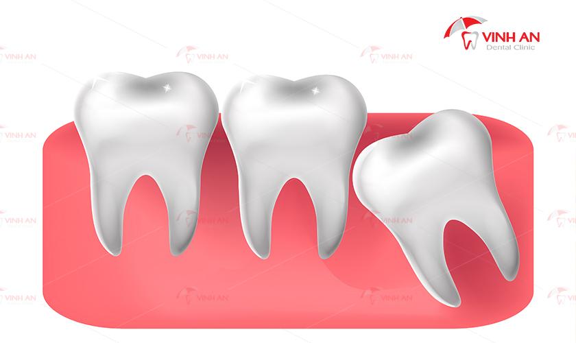 tiểu phẫu răng khôn thế nào