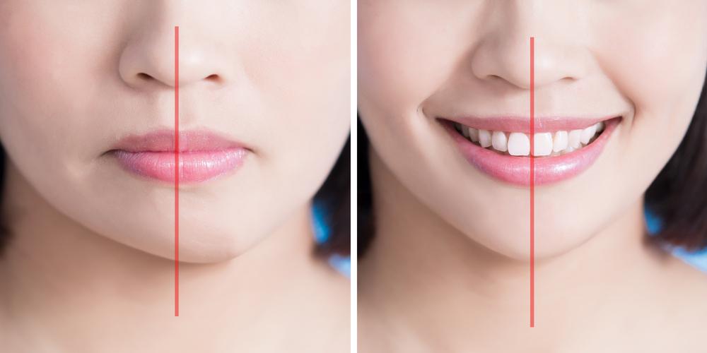 Cách khắc phục gương mặt bị lệch