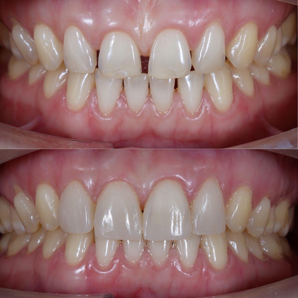 Trám răng thưa là gì?