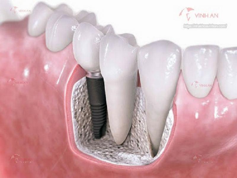 trồng răng có bền không