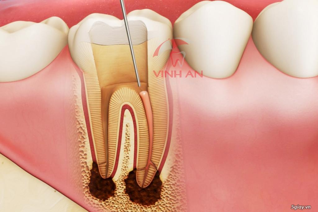 Thuốc diệt tủy răng thường được tiêm trước khi hút tủy răng