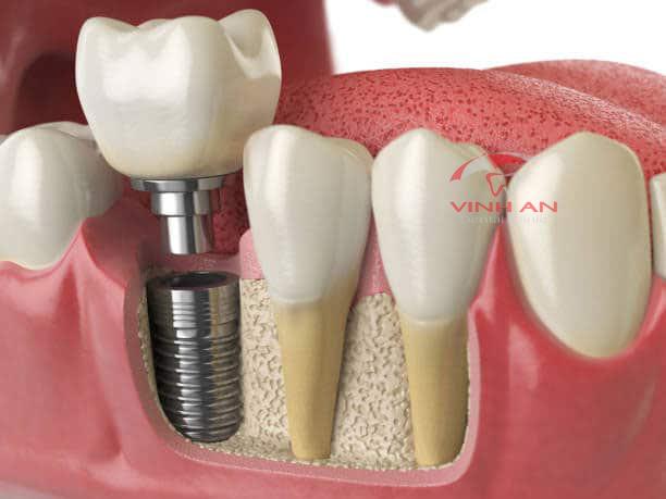 Implant bị trồi lên là dấu hiệu có thể gặp phải sau khi cấy ghép