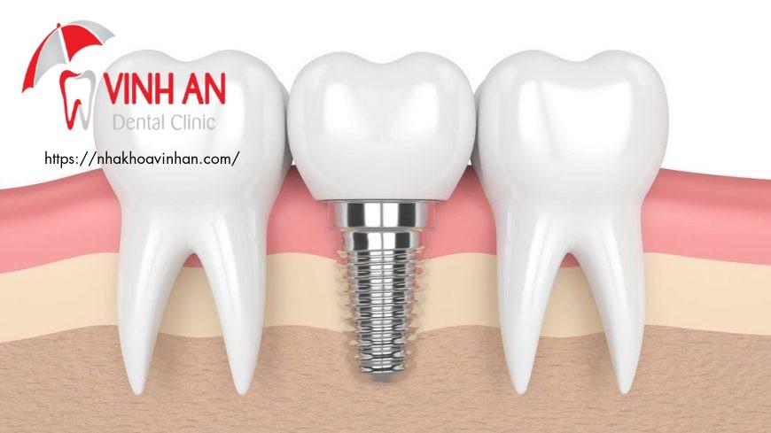 lưu ý khi trồng răng implant