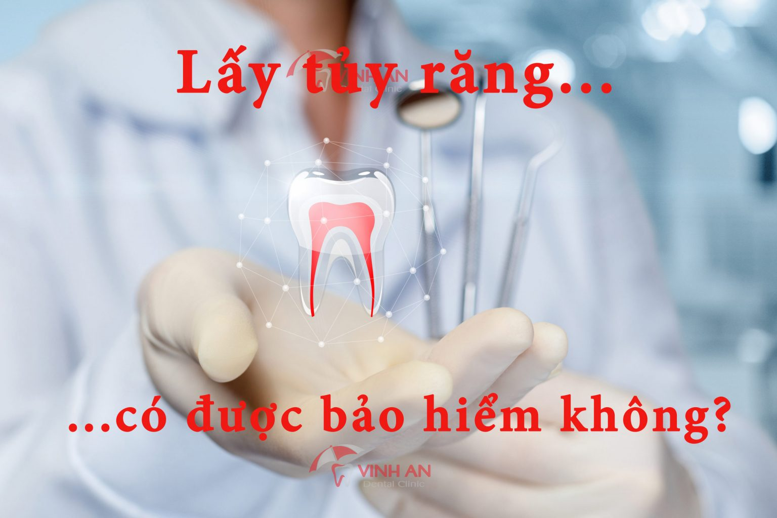Lấy tủy răng có được bảo hiểm không