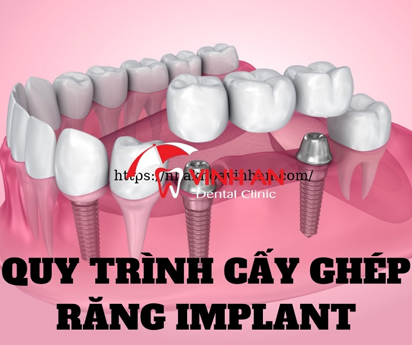 Cấy ghép răng Implant cho đối tượng nào?