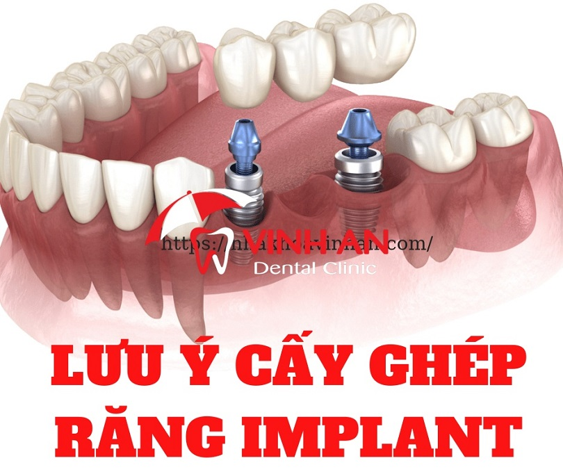 Quy trình cấy ghép răng Implant tại Nha Khoa Vinh An