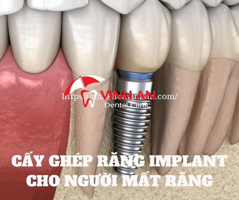 Vì sao nên cấy ghép răng implant thay vì phương pháp khác?