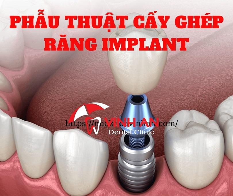 Cấy ghép răng là gì?