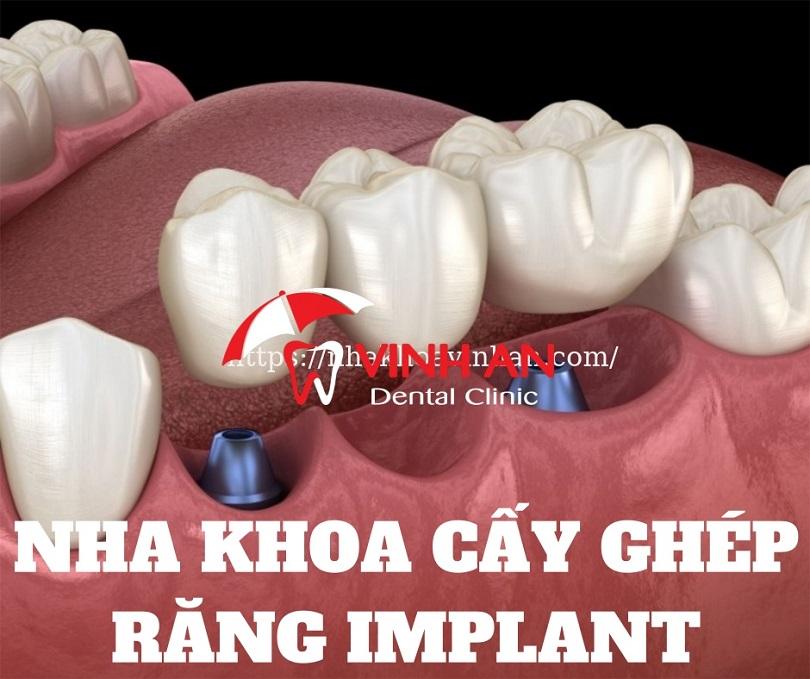 Cấy ghép răng ở đâu tốt giá rẻ an toàn TpHCM?