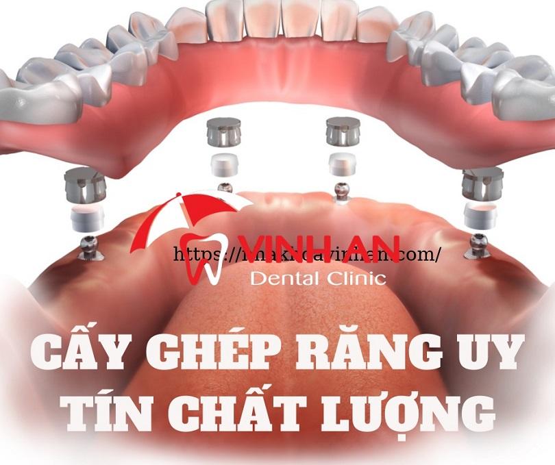 Cấy ghép răng implant Nha Khoa Vinh An