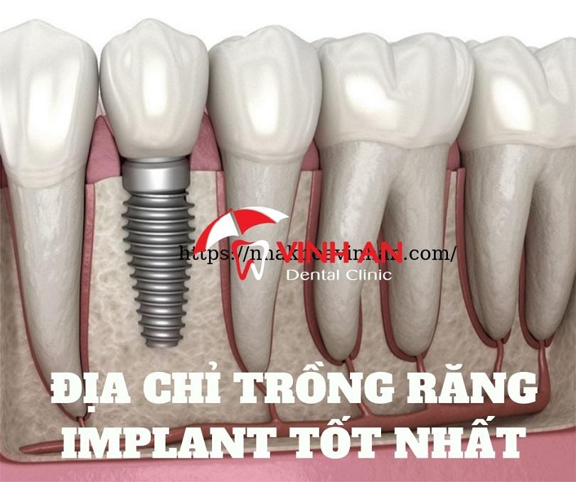 địa chỉ trồng răng implant tốt nhất tại TpHCM