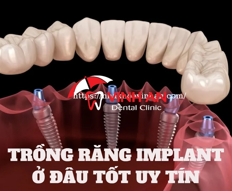 địa chỉ trồng răng Implant uy tín tại TPHCM