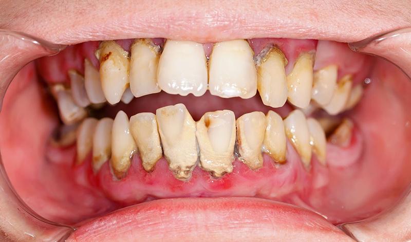 8 tác hại của việc không đánh răng bạn không nên chủ quan   Vinhan