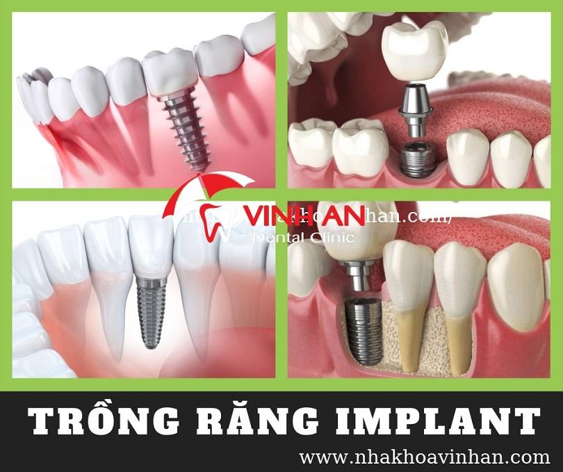 Trồng implant 1 răng tại Vinh An
