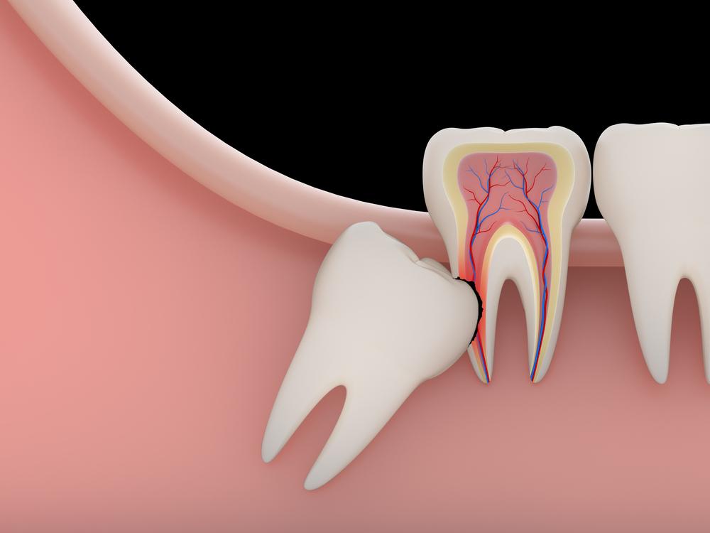 răng khôn mọc chèn dây thần kinh