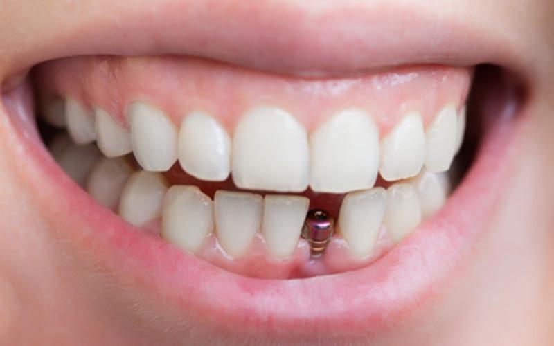 uu-nhuoc-diem-cua-phuong-phap-cay-ghep-mini-implant-1