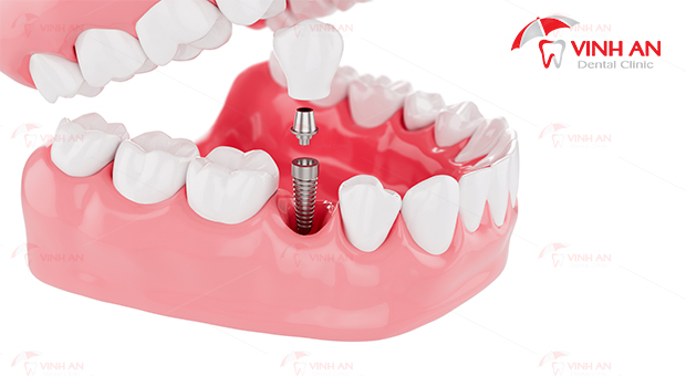 gia-lam-rang-su-implant-co-quyet-dinh-den-chat-luong-cua-phuong-phap