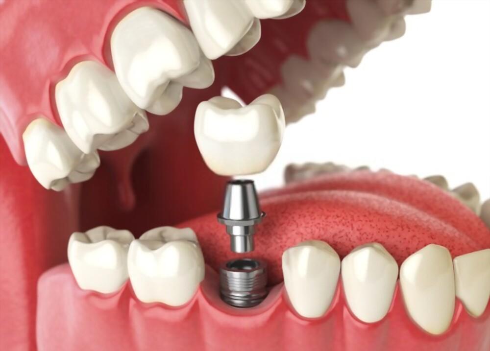 chi-phi-cay-ghep-implant-co-qua-dac-nhu-ban-nghi-hay-khong-1
